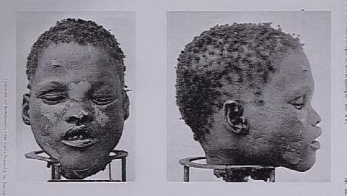 Ein Opfer der deutschen Massaker (Foto: screenshot)
